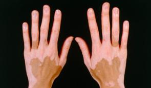 Vitiligo detoxikace – novinka