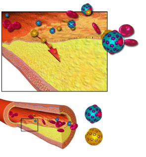 Dieta přivysokém cholesterolu