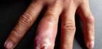 Flegmóna cellulitis