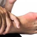 Zánět kloubu palce nanoze