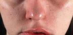 Co pomáhá naotok tváře od zubů