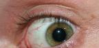 Rekonvalescence pooperaci sítnice