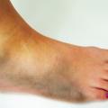 Cukrovková noha