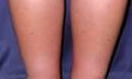 Co naotoky nohou