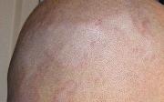 Seboroická dermatitida - léčba