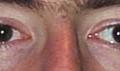 Léčba tupozrakosti v dospělosti