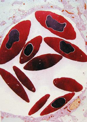 Anémie