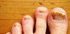 Jak bojovat s plísní nehtů na nohou