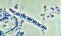 Kožní plísňová onemocnění