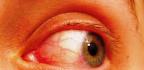 Červené žilky v oku