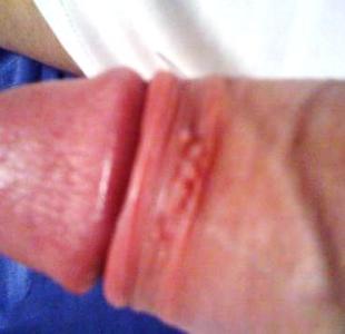 opar na penisu