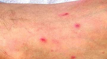 Petechie – červené skvrny na kůži