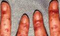 Seboroická keratóza