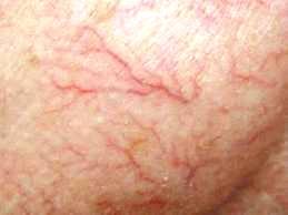 Léčba metličkových žilek