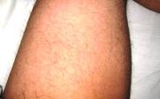 Natržený sval