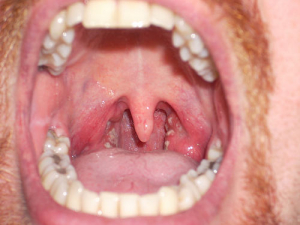Zkušenosti s laryngitidou