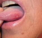 Vředy na jazyku