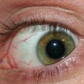 Oční klinika DuoVize