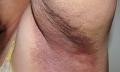 Erythrasma